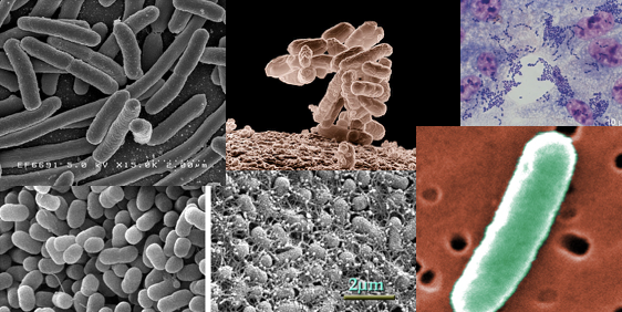 Collage of E coli strains